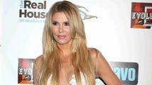 Americká herečka a modelka známá z reality show Paničky z Beverly Hills se ošklivě zranila na hoverboardu