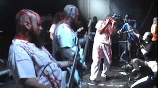 GENERAL SURGERY Live at OEF 2010
