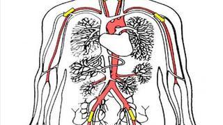 Thrombosis - Harmful Blood Clotting